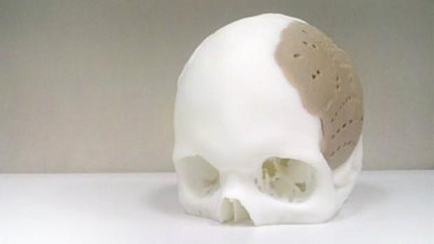 Realizohet zëvendësimi i 75% të kafkës njerëzore me materiale të prodhuara nga printerat 3D
