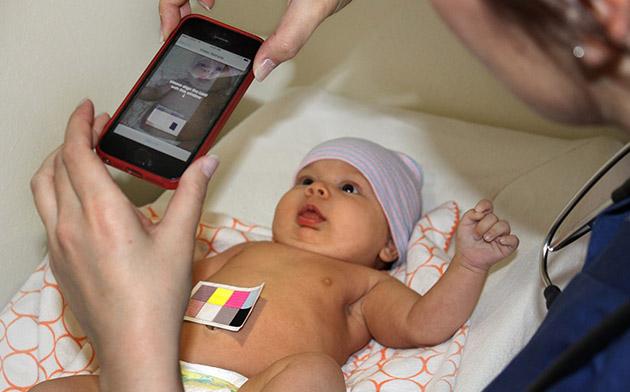 Krijohet aplikacioni që identifikon sëmundjen e verdhëzës