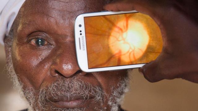 Skuardra Peek premton lançimin e aplikacionit që shërben për një testim të thjeshtë të shikimit