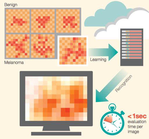IBM, projekt për të luftuar kancerin e lëkurës