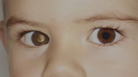 Smartfonët mund të diagnostifikojnë kancerin në sy