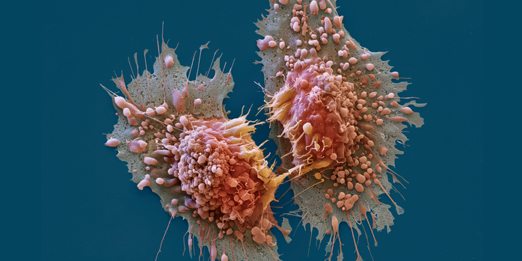 cancer-1200x600